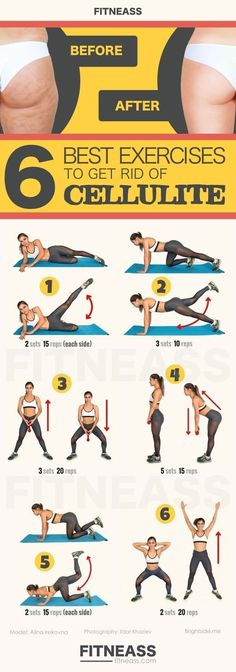 5 Best Exercises To Get Rid Of Cellulite On Thighs, Legs, And Bum #CelluliteRemovalFrom #CelluliteWrap Thigh Cellulite, Cellulite Wrap, Causes Of Cellulite, Cellulite Exercises, Cellulite Remedies, Reduce Cellulite, Plie Squats, Do Exercise, Anti Cellulite