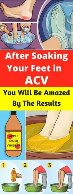After Soaking Your Feet In ACV You Will Be Amazed By The Results! We are not the lucky ones who &; After Soaking Your Feet In ACV You Will Be Amazed By The Results! We are not the lucky ones who […] bath detox recipes cider vinegar Apple Health Benefits, Apple Cider Benefits, Health Remedies, Home Remedies, Natural Remedies, Apple Cider Vinegar Warts, Foot Detox Soak, Quick Weight Loss Tips, Healthy Exercise