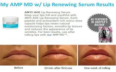 The Amp MD Roller is great for your face and neck but did you know you can use it on your lips with our Lip Renewing Serum?!! www.jamiestinchcomb.myrandf.com