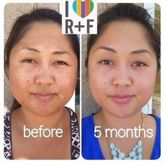 It's Aloha Wednesday peeps! Brighten up with our REVERSE line & Micro Exfoliator for that natural vibrant look! My own personal and favorite regimen!!Empty bottle 60 day money back guarantee!!I dare you to go #rfnaked %uD83D%uDE09  #rodanandfields #rfgonaked message me for details 808-364-8752