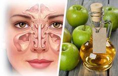 La sinusitis es la inflamación de los senos del cráneo situados en la frente sobre los dos lados de la nariz, que es debida a una infección de las fosas nasales o de los alvéolos dentarios; suele producir obstrucción nasal y dolor de cabeza. Limpiar los senos paranasales ayuda a prevenir y combatir infecciones. Es por ello que en este …