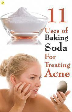 Are you facing embarrassment and discomfort due to your acne prone skin? Did you ever use Baking Soda for Acne? Here are 11 effective ways to use baking soda for treating acne Baking Powder For Cleaning, Baking Soda For Acne, Baking Soda Shampoo, Baking Soda Uses, Herbal Remedies, Home Remedies, Natural Remedies, Brown Spots On Hands, Dark Spots