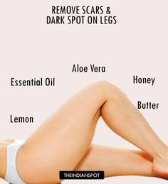 How to remove dark spots on legs naturally Natural Hair Mask, Natural Skin, Natural Beauty, Natural Healing, Leg Scars, How To Get Rid, How To Remove, Dark Spots On Legs, Getting Rid Of Scars