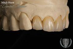 Dental crowns, Cosmetic Dentistry, Beautiful Smile, Ceramic Restoration,  hurstdentalstudio.com