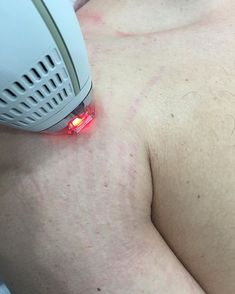 Even men have stretch marks!! Our new laser is excellent for red and white stretch marks on the arms, legs, and #buttocks. #stretchmarks #stretchmarkremoval #striae #malestretchmarks #hideflipo #bodyplasticsurgery #gymflow #jounieh #anjar #cilicia #naked #buttocks #firmbutt #buttexercises #nudebod #bikinibody #weightlifting #powerlifting #weightgain #weightloss #santamonica #montanaavenue #siliconebeach #siliconebeachla #siliconbeach #venicebeach