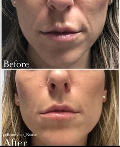Celebrity Beauty Treatments You Can Afford Juvederm Before And After, Beauty Bar, Hair Beauty, Nasolabial Folds, Lip Augmentation, Laugh Lines, Cosmetic Treatments, Cool Sculpting, Medical Spa