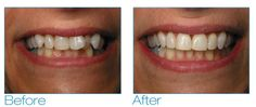Adult Braces Patient Stories | Six Month Smiles    #SmileOasis.com