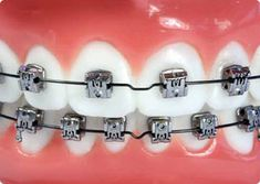 Ruel John Halasan is passionate about her profession and his responsibility to your family's dental health. Dental Health, Dental Care, Cute Braces, Dental Logo, Muslim, Davao, Clinic, Tooth, Metal