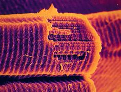 Human striated muscle fibres.    Image Source: Science Photo Library.