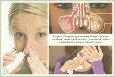 El tratamiento de pólipos nasales remedios populares