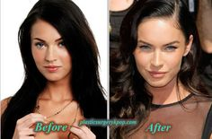 Megan Fox Plastic Surgery Before After Pictures ✿. ☺ ☺ - Care - Skin care , beauty ideas and skin care tips Megan Fox Plastic Surgery, Plastic Surgery Facts, Plastic Surgery Photos, Celebrity Plastic Surgery, Celebrities Before And After, Before And After Pictures, Famous Celebrities, Celebs, After Surgery
