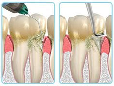 http://www.dentclick.in/dentalinfo/oraqix/  #Oraqix is a needleless form of local anesthesia used for gum disease treatment, specifically, scaling and root planing. In fact, Oraqix is the first and only FDA-approved needle-free subgingival (below the gum line) dental anesthetic intended for scaling and root planing procedures.