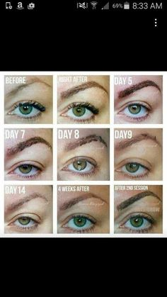 Microblading The common stages of healing when you have had a Microblading procedure.