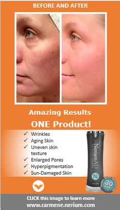 Click this image to see 1000+ before and after photos of REAL people (not models!) like you and me.  www.carmene.nerium.com
