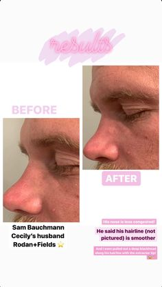 Pore Cleansing, Rodan And Fields, Hairline, Cleanse, Sayings, Lyrics, Quotations, Idioms, Quote