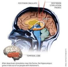 Alzheimer's damage reversed by deep brain stimulation - After deep brain stimulation near the formix, the hippocampus grew in two out of six people with Alzheimers