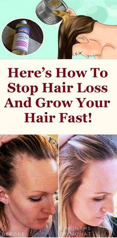 excess hair fall treatment at home