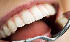 como ter dentes brancos 97083062