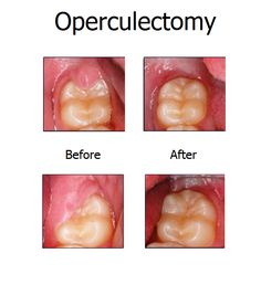 Operculectomy is a simple surgical excision of the gum tissue on the top of the tooth