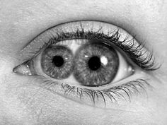 Pupula duplex. An extremely rare condition where there are two pupils in one eye. Fascinating. (image only)