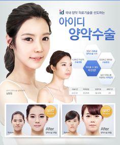 Image result for 성형