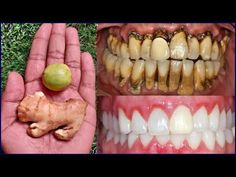 2 minutes - Effective recipe to make dirty yellow teeth white and shiny Teeth Whitening at Home - White teeth - Teeth Care, Skin Care, Tooth Sensitivity, Teeth Bleaching, Natural Teeth Whitening, Cosmetic Procedures, White Teeth, Health Remedies, Food To Make
