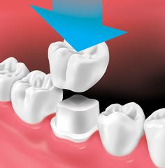 Dental Crowns   Aspen Dental