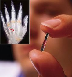 FAKE - CLAIM: Global Control through the RFID Chip TRUTH: 2007 photo about a new technology. The chip shown is actually one that measures glucose levels in diabetes patients. I don't know if they were ever commercially produced.  Assume nothing and question everything.