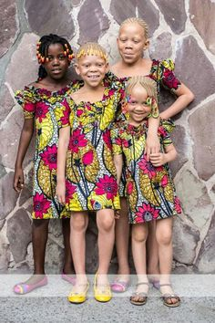 Approximately one person in 17,000 is born with albinism, while albino black people are even more rare.