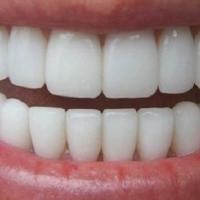 Il n'y a pas que les stars qui ont le droit d'avoir les dents bien blanches. Il existe heureusement des recettes naturelles pour avoir les dents blanches. Avec ces remèdes, vous aurez les dents plus blanches en seulement quelques mois. Découvrez l'astuce ici : http://www.comment-economiser.fr/trucs-grand-mere-pour-dents-blanches.html