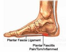 No, it's not a wart. Plantar Fasciitis was a plague over the summer, a plague!  I do admit it was my fault, I spent too much t...