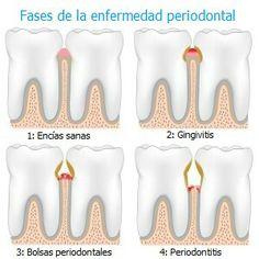 Fases de la enfermedad #periodontal