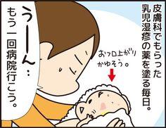 薬だけでは治らなかった乳児湿疹 の症状が目に見えて改善!「乳児湿疹⑤」