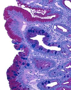 Gastroesophageal reflux disease and Barrett's esophagus. Image from Hidden Beauty.
