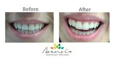 Veneers case. Asensio. Dentist Abroad Spain. Before and After