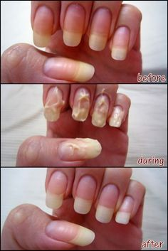 How to whiten your nails: Just layer a small amount of whitening tooth paste on each of your nail and leave it on for about 10 minutes. Wash it off, and then buff your nails.••ALSO-) Baking soda and lemon juice! Great for growing out your nails(: