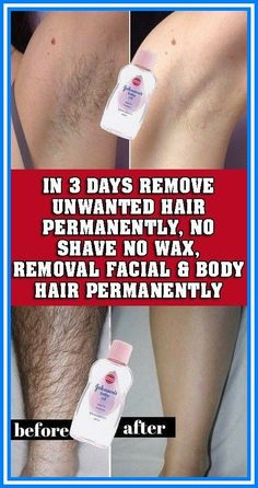 REMOVE UNWANTED HAIR PERMANENTLY IN THREE DAYS, NO SHAVE NO WAX, REMOVAL FACIAL & BODY HAIR PERMANENTLY #ChinHairRemoval Permanent Facial Hair Removal, Chin Hair Removal, Underarm Hair Removal, Remove Unwanted Facial Hair, Hair Removal Remedies, Hair Removal Methods, Unwanted Hair, Female Facial Hair, Best Hair Removal Products