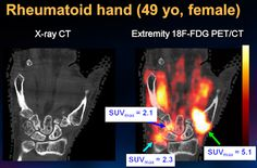 Novel PET/CT device offers insight into inflammatory arthritis: Researchers at the University of California, Davis (UCD) School of Medicine have developed a unique extremity PET/CT system that may become a promising tool for monitoring disease activity and studying the pathogenesis of inflammatory arthritis such as rheumatoid and psoriatic arthritis.  Pictured: Hand of a female patient with rheumatoid arthritis