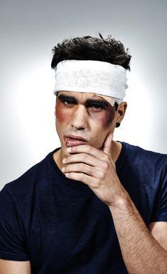 Head Injury Damages Brain's Disposal System, Increases Dementia Risk  | www.medplain.com #medicalnews #healthcare