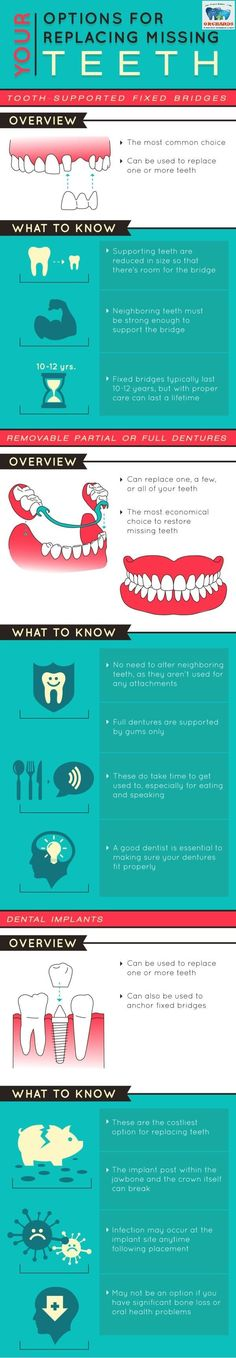 #ODC_fact Do you have a few teeth missing..?? Here are few options that you could consider..