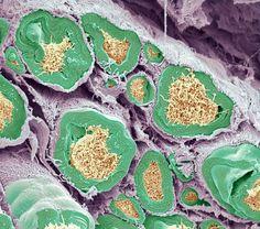 Al microscopio SEM x2300 sección del nervio ciático que muestra las fibras nerviosas (axones) y fibras de tejido conectivo  (filiforme). SciencePhotoLibrary