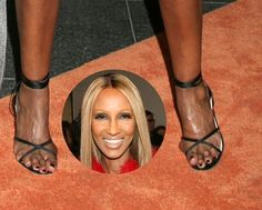 EW: Check Out 8 Celebs With Truly Horrible Feet-- Including Paris Hilton, Katie Holmes & More! Paris Hilton Kim Kardashian, Walking In Heels, Foot Pictures, Animal Pictures, Balayage Hair Blonde, Bunion, Shaquille O'neal, Katie Holmes, Celebrity Feet