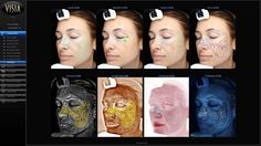 Using state-of-the-art imaging digital photography, VISIA documents and evaluates the skin's texture, wrinkles, pores and pigmentation. Quantitative analysis includes a comparison of individual skin conditions characteristic of the same sex, age, and ethnicity. This personalized skin analysis provides a basis for discussing skin care treatment options and measurement for tracking future progress.  SEE IT FOR YOURSELF. Call 210-545-3327 to schedule your complimentary consultation.