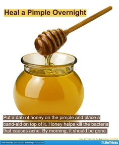 Acne - Heal a Pimple Overnight