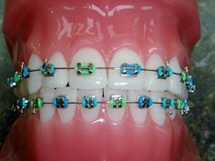 Braces Colors Combinations Carribean crush