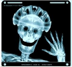 Bike helmet Xray...shows that we have good reason to wear one!