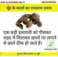 Good Health Tips, Health And Fitness Articles, Natural Health Tips, Health And Beauty Tips, Health And Nutrition, Health And Wellness, Ayurvedic Remedies, Home Health Remedies
