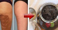 Como Eliminar a Celulite em 15 Minutos Diários | Dicas de Saúde