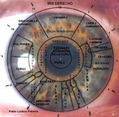 Mapa del iris derecho. Lateralidad de los signos. Iridología