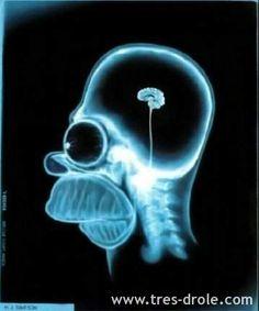 Radiographie - Patient: Homer Simpson sur très drôle | Photos débiles